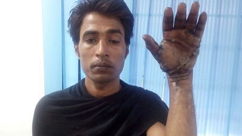 Surgeons spent six hours reattaching Ibrahim Khan's hand after it was mangled in a cement crusher.  surgeons save construction worker's mangled hand after gruesome injury Surgeons save construction worker's mangled hand after gruesome injury Surgeons save construction workers mangled hand after gruesome injury